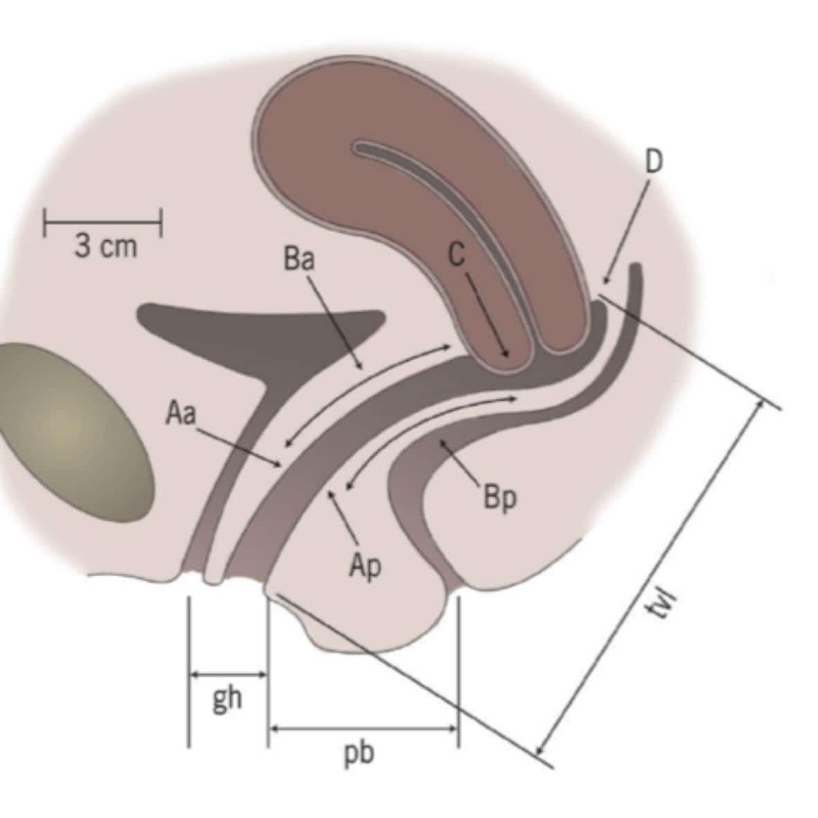 Энтероцеле